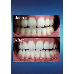 Отбеливание зубов с максимальным эффектом.