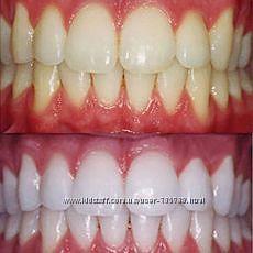 Отбеливание зубов Supreme Professional. США