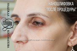 Наношлифовка - альтернатива аппаратному микронидлингу